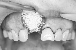 Imagem representando o enxerto ósseo sintético