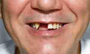 Imagem que representa um homem sem dois dentes da superiores da frente