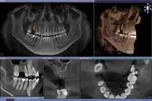 Imagem de uma tomografia