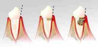 Sondagem periodontal