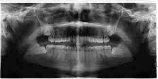 Dentes do siso impactados