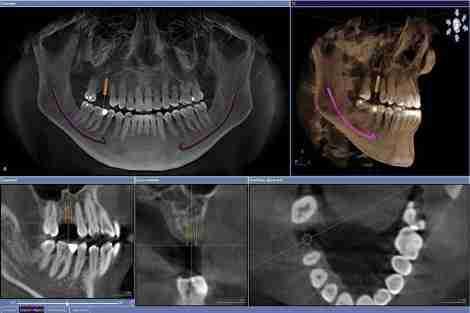 Tomografia computadorizada para planejamento de implante