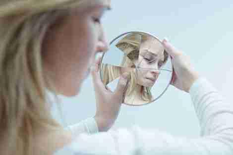 Uma jovem com baixa autoestima por perda dentária
