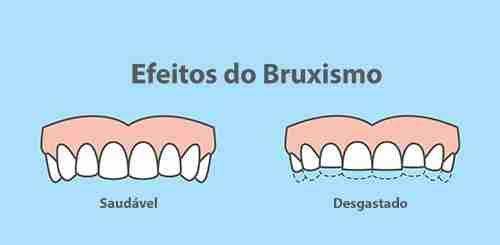 Imagem que representa o desgaste com o rangimento o dente a longo prazo