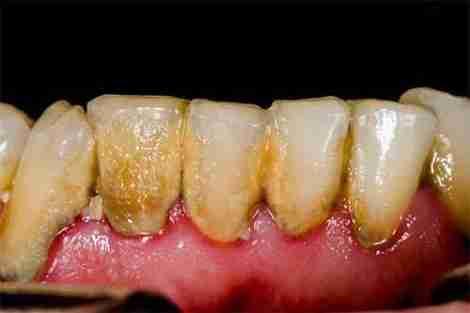 Paciente com grande presença de tártaro por higiene dental ruim