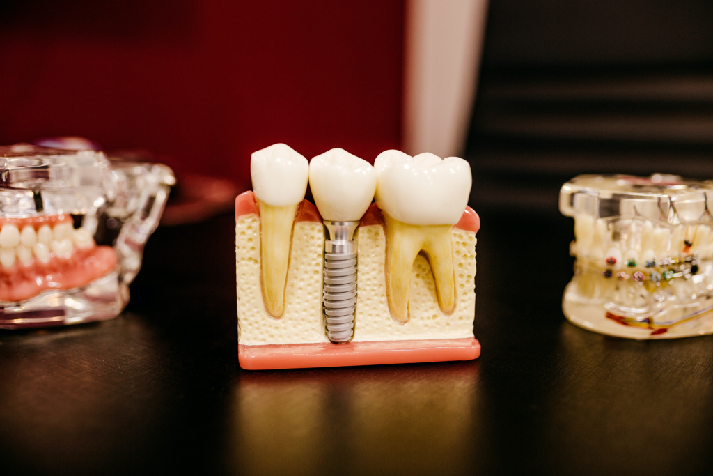 O que é Implantodontia?