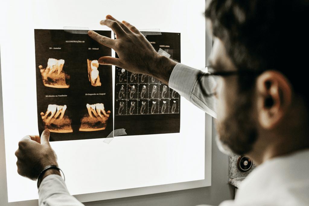 Benefícios do diagnóstico por imagem digital na odontologia
