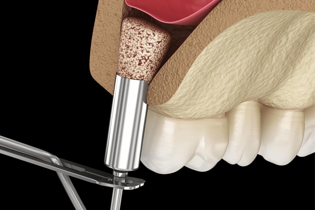 O que é enxerto ósseo?